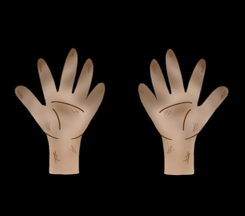 汚れた両手のイラスト